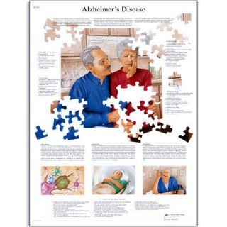3B Scientific Alzheimers Disease Anatomical Anatomy Chart Poster Heavy